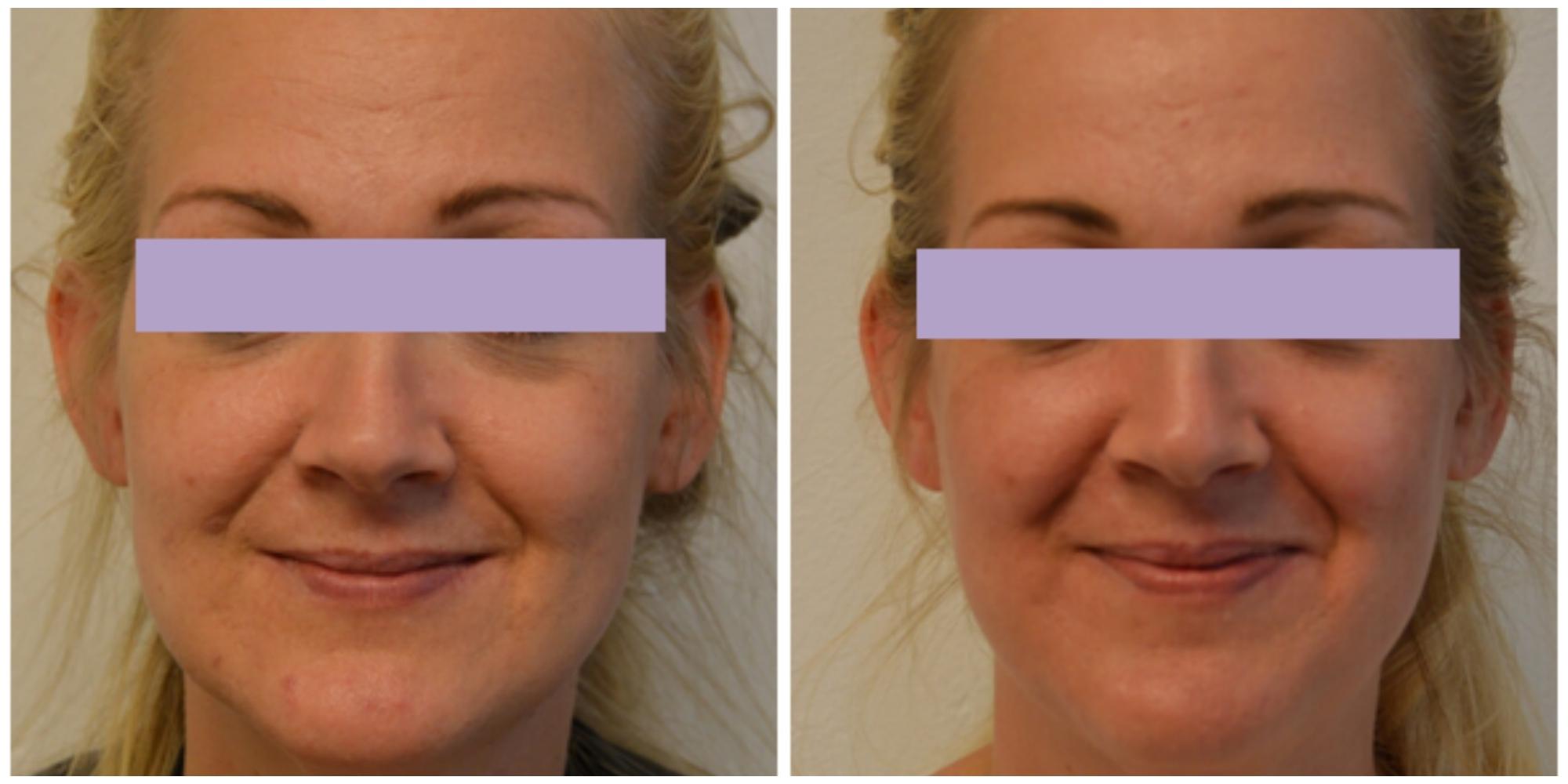 behandling med laser ger slätare hud