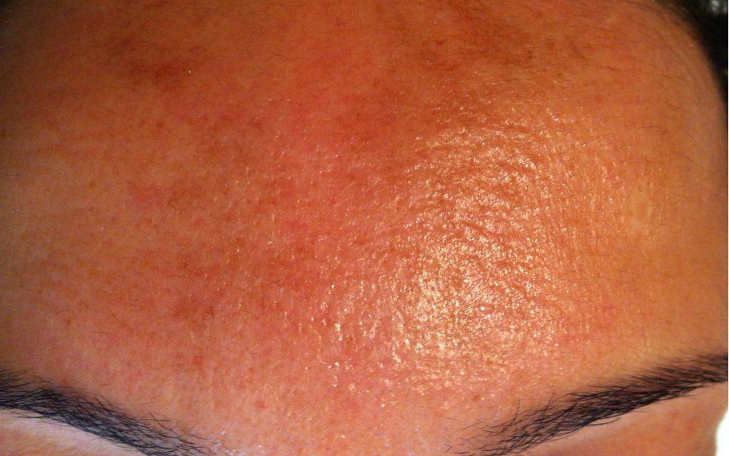 behandling av malsma med laser