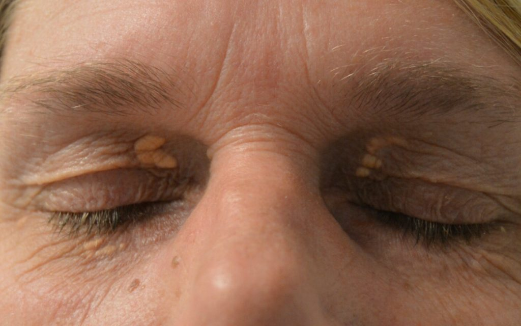 Xantelasma behandling med laser