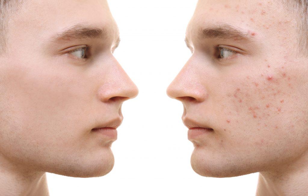 Aknebehandling med IPL ger mycket goda resultat, speciellt på hormonell acne. IPL läker inflammationen i huden så att aknen läker ut