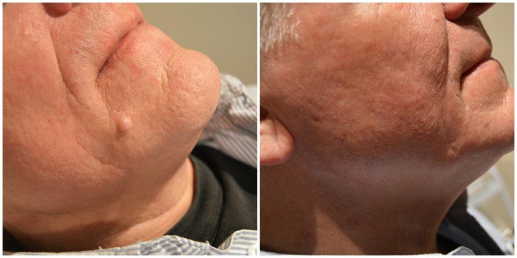 laserbehandling av fibrom