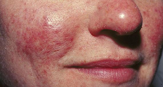 Rosaceabehandling med IPL är en effektiv behandling som behandlar kärl och normaliserar huden, den läker inflammationen i huden och gör den mindre röd