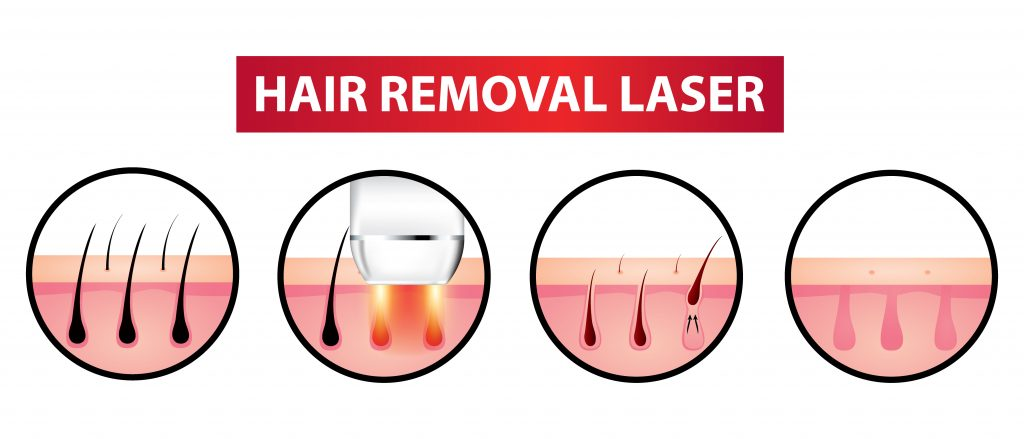 Hårborttagning med IPL laser